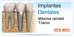Implantes Dentales - Implantologia