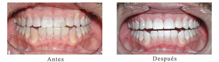 Antes y Despues Blanqueamiento Dental Carlos
