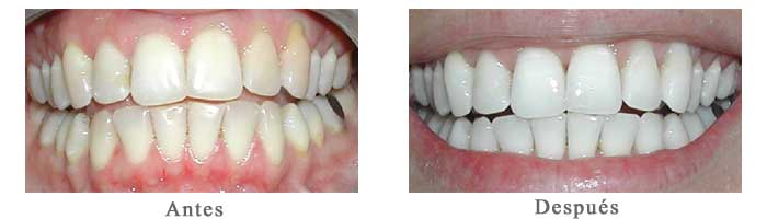 Antes y Despues Blanqueamiento Dental Jakeline L