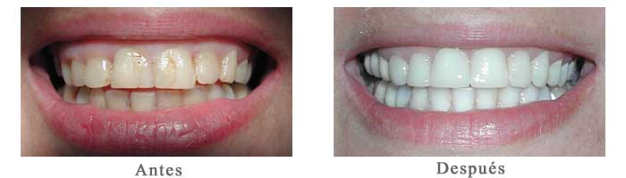 Antes y Despues Blanqueamiento Dental Jakeline S