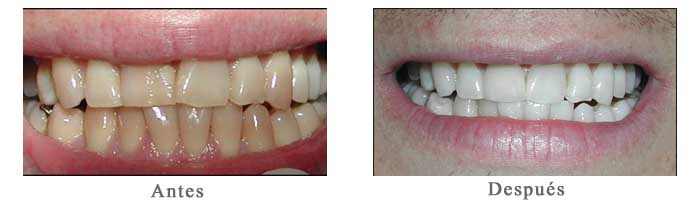 Antes y Despues Blanqueamiento Dental Jose Miguel