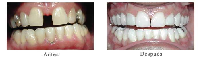Antes y Despues Diseño de Sonrisa Mauricio