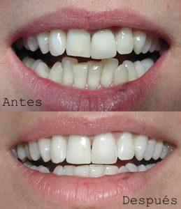 Antes y Después Diseño de Sonrisas Caso 1