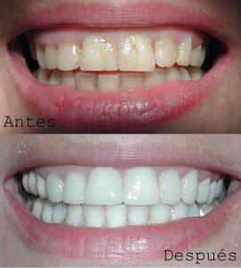 Antes y Después Diseño de Sonrisas caso 3