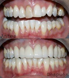 Antes y Después Diseño de Sonrisas caso 4