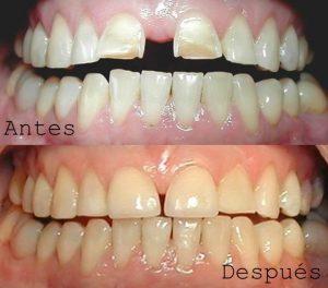 Antes y Después Diseño de Sonrisas caso 5