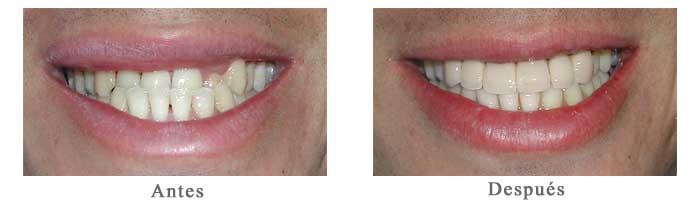 Antes y Despues Diseño de Sonrisa Jorge