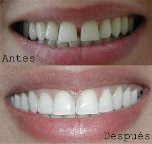 Antes y Después Diseño de Sonrisas Caso 2