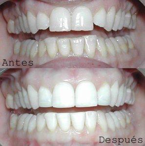 Antes y Después Diseño de Sonrisas caso 10