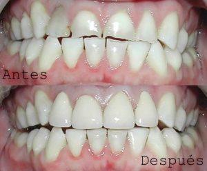 Antes y Después Diseño de Sonrisas caso 6