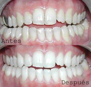 Antes y Después Diseño de Sonrisas caso 7