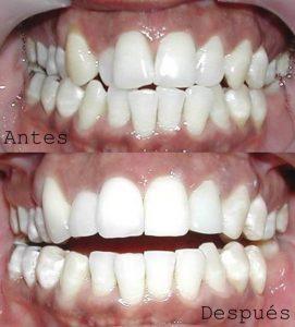 Antes y Después Diseño de Sonrisas caso 8