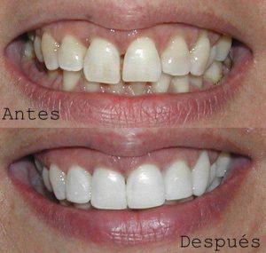 Antes y Después Diseño de Sonrisas caso 9