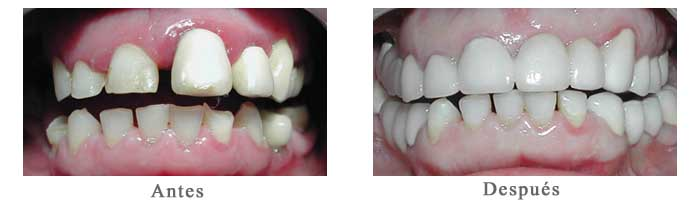 Antes y Despues Rehabilitacion oral Edith