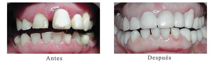 Antes y Despues Rehabilitacion oral Edith