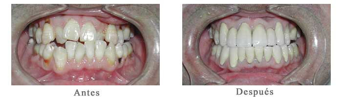 Antes y Despues Rehabilitacion oral Luis