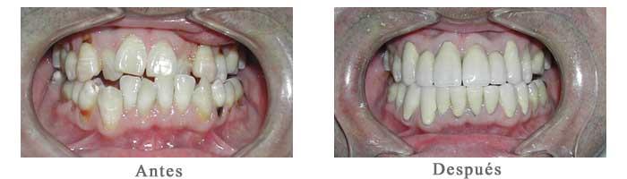 Antes y Despues Rehabilitacion oral Luis