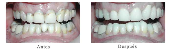 Antes y Despues Rehabilitacion oral Nicolas