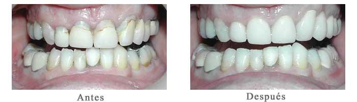 Antes y Despues Rehabilitacion oral Nicolas