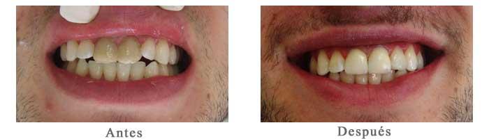 Antes y Despues Rehabilitacion oral