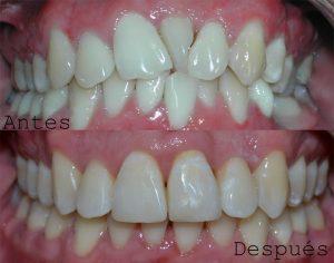 Antes y Despues ortodoncia caso 1 brackets cerámicos