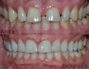Antes y Despues ortodoncia caso 2 Invisalign