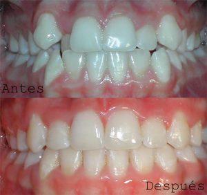 Antes y Despues ortodoncia caso 3 brackets metálicos