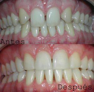 Antes y Despues ortodoncia caso 4 brackets de zafiro