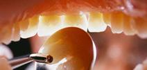 Cirugía Dental 2