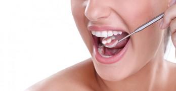 Estética Dental u Odontología Estética