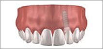 Implantes Dentales 3