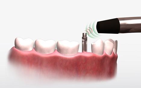 Osstell e Implanes dentales