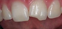 Rehabilitación Oral 1