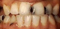 Rehabilitación Oral 2