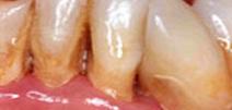 Rehabilitación Oral 3