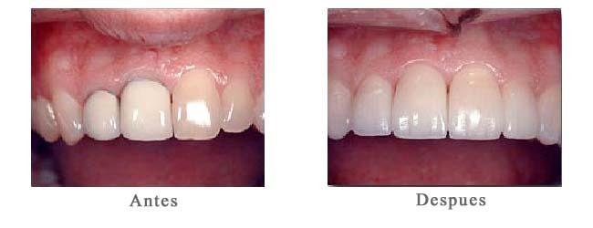 Resultado de imagen de implantes de zirconio