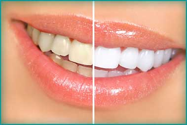 Antes y Despues Blanqueamiento Dental