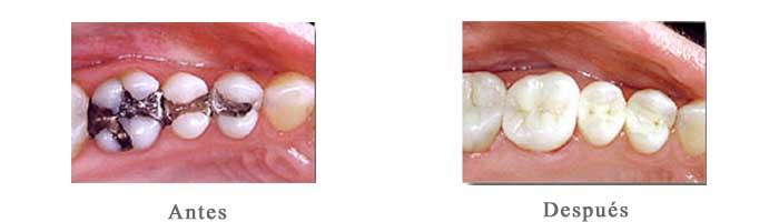 Antes y Despues amalgamas carillas