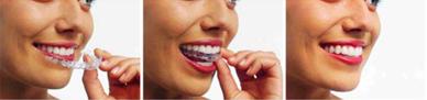 Frenillos Invisibles ortodoncia Invisalign