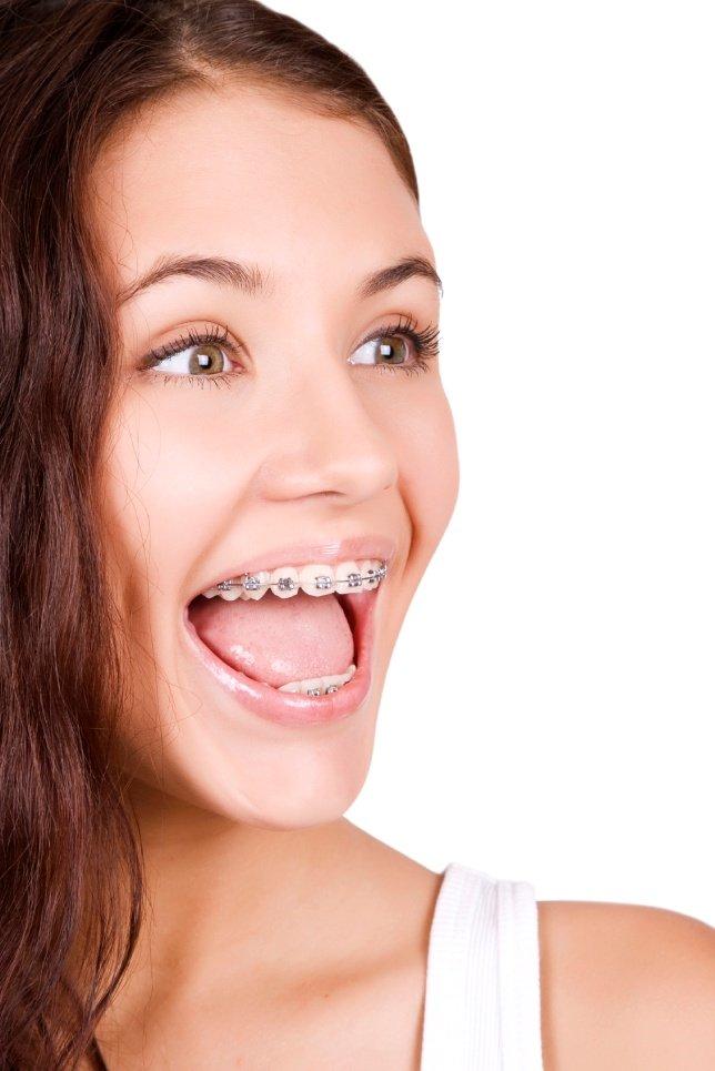 Frenillos tradicionales ortodoncia