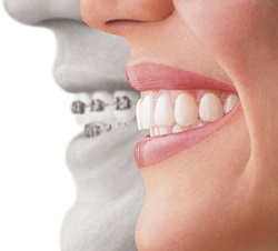 Invisalign vs Frenillos metálicos