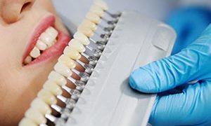Preguntas Frecuentes Sobre Blanqueamiento Dental