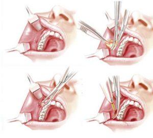 Bichat cirugia