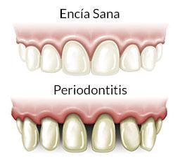 Encías y Periodontitis