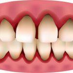 boca gingivitis