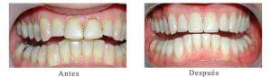Antes y Después Estetica Dental Antonio A