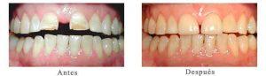 Antes y Después Estetica Dental Blanca B.
