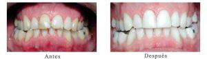 Antes y Después Estetica Dental Claudio P.