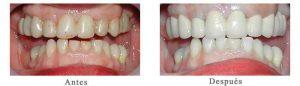 Antes y Después Estetica Dental Gladys R