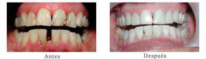 Antes y Después Estetica Dental Maria Cristina